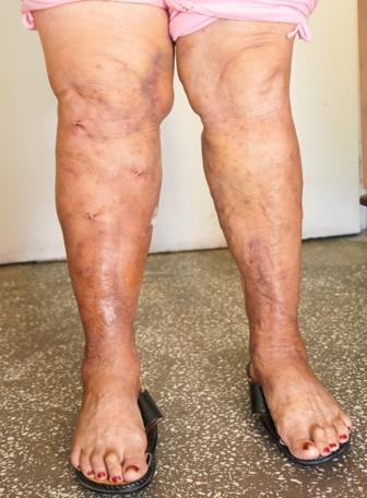 cât de mult să bing piciorul după funcționarea varicelor